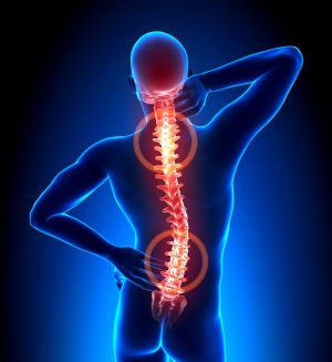 Douleurs dorsales : douleurs de cotes, TOS, Scoliose, névralgie intercostale, fibromialgie, …