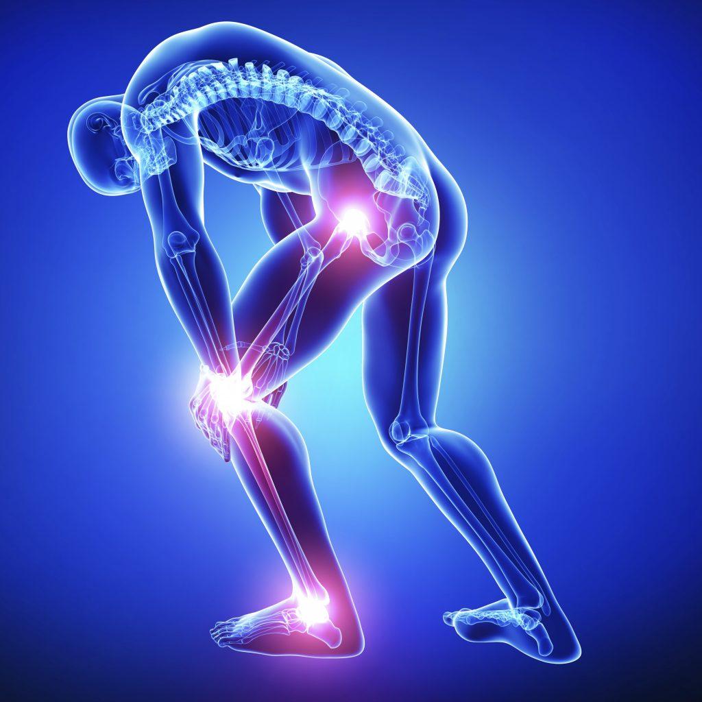 Douleurs hanche, genou, cheville, pied : entorse, tendinites, arthrose