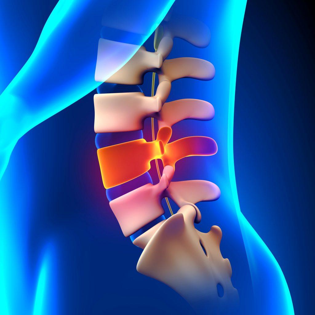 Douleurs lombaires :  hernie discale, canal lombaire étroit, lumbago, …
