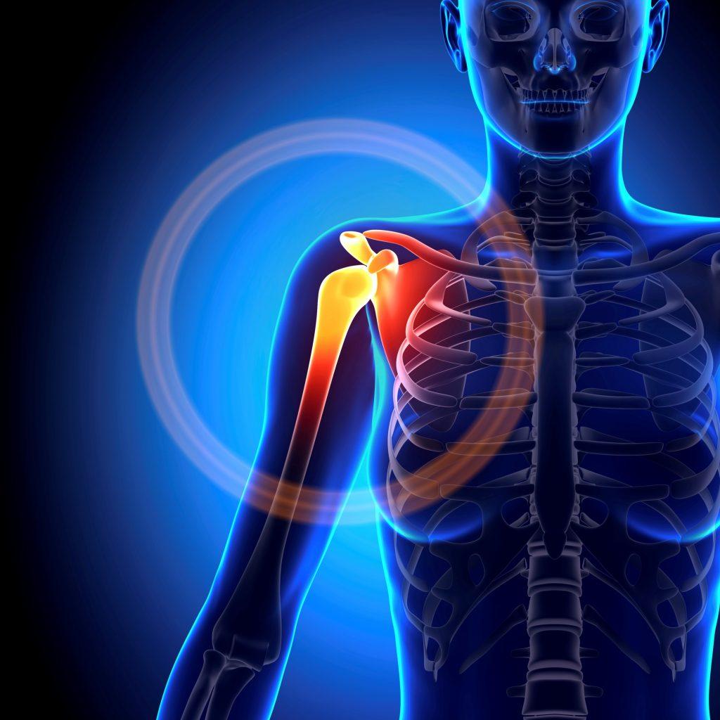 Douleurs Epaule, Coude, Poignet, Main : Epaule gelée, syndrome du canal carpien, canel de guyon, tendinites